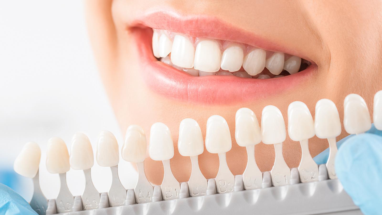 Estetica Dentale Centro Dentale Parmense