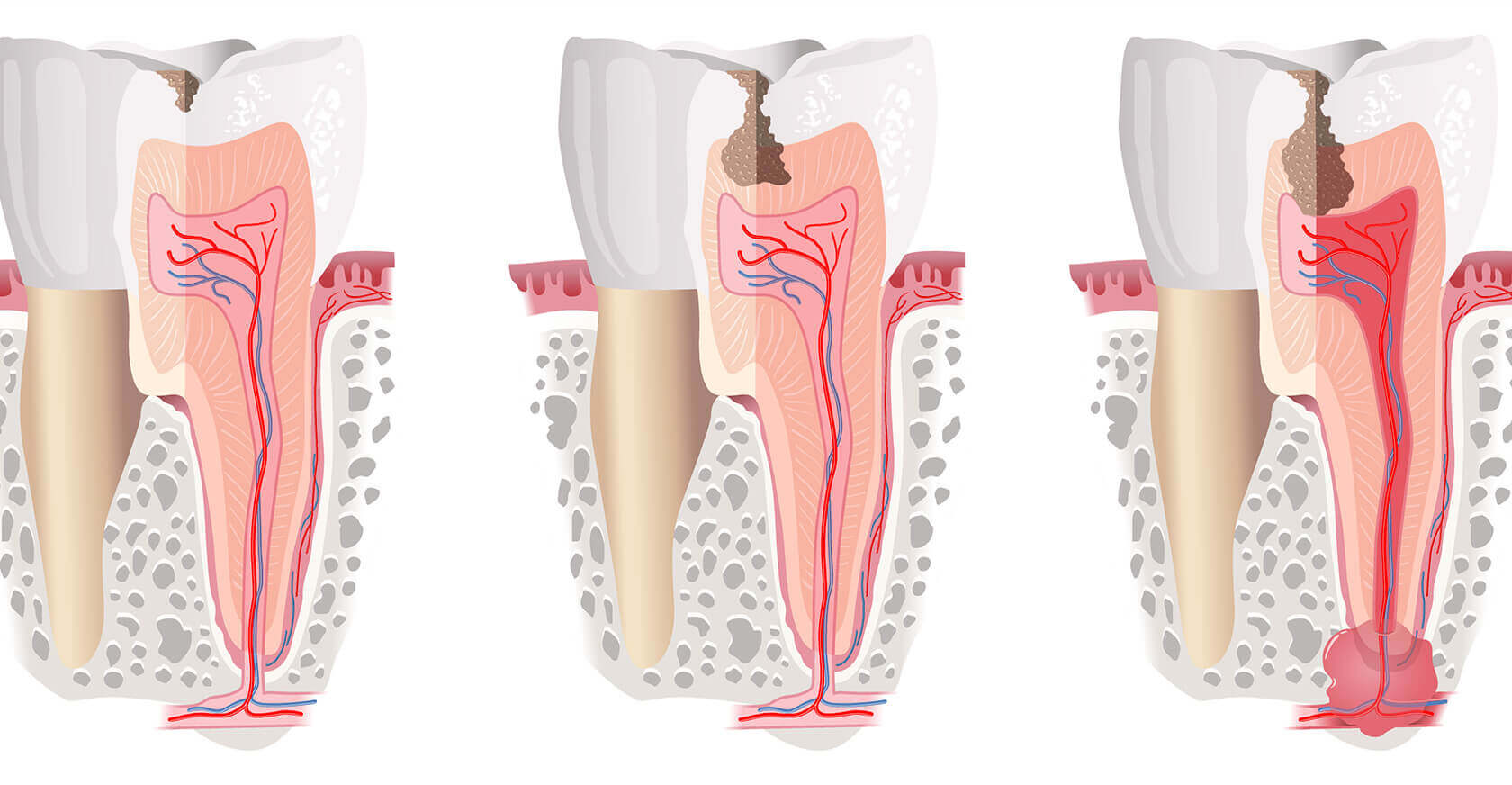 Odontoiatria Conservativa Centro Dentale Parmense | Dentisti in Parma