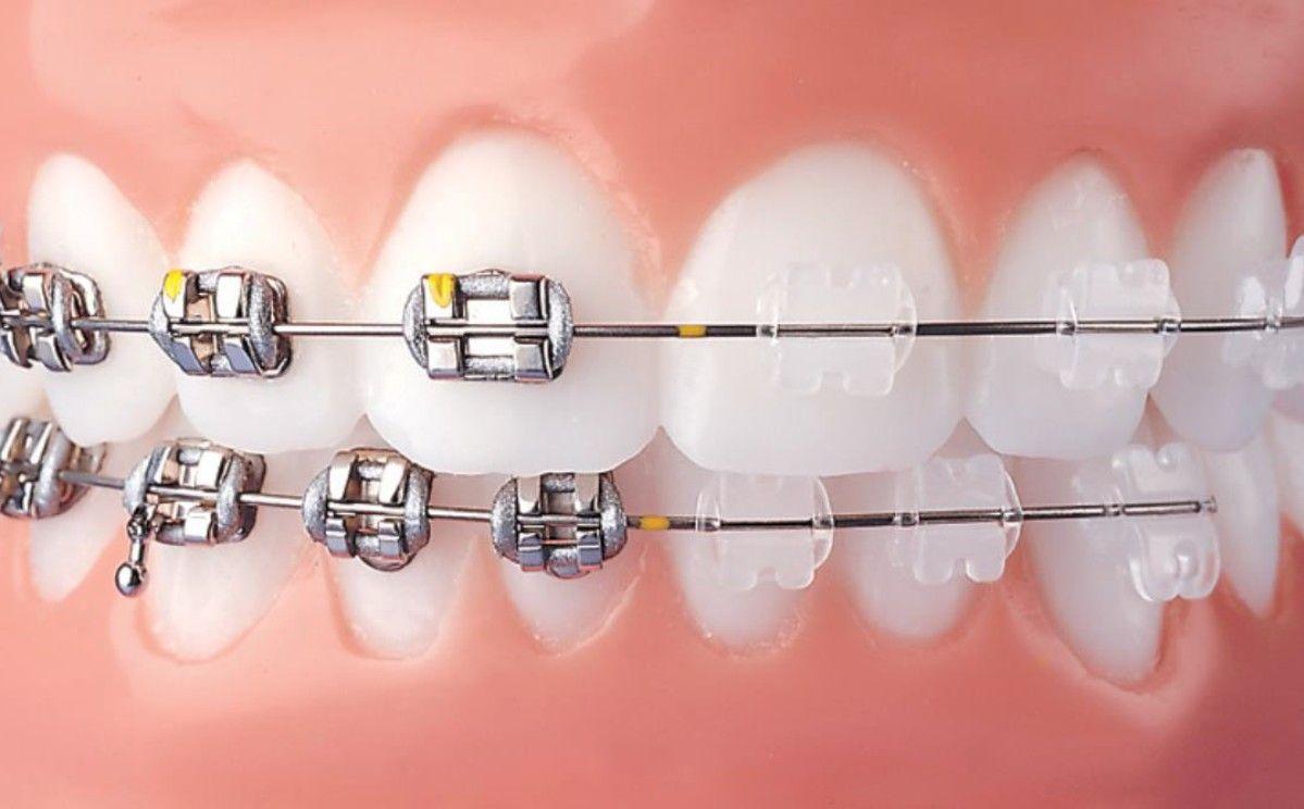 Ortodonzia Fissa Centro Dentale Parmense| Dentisti in Parma