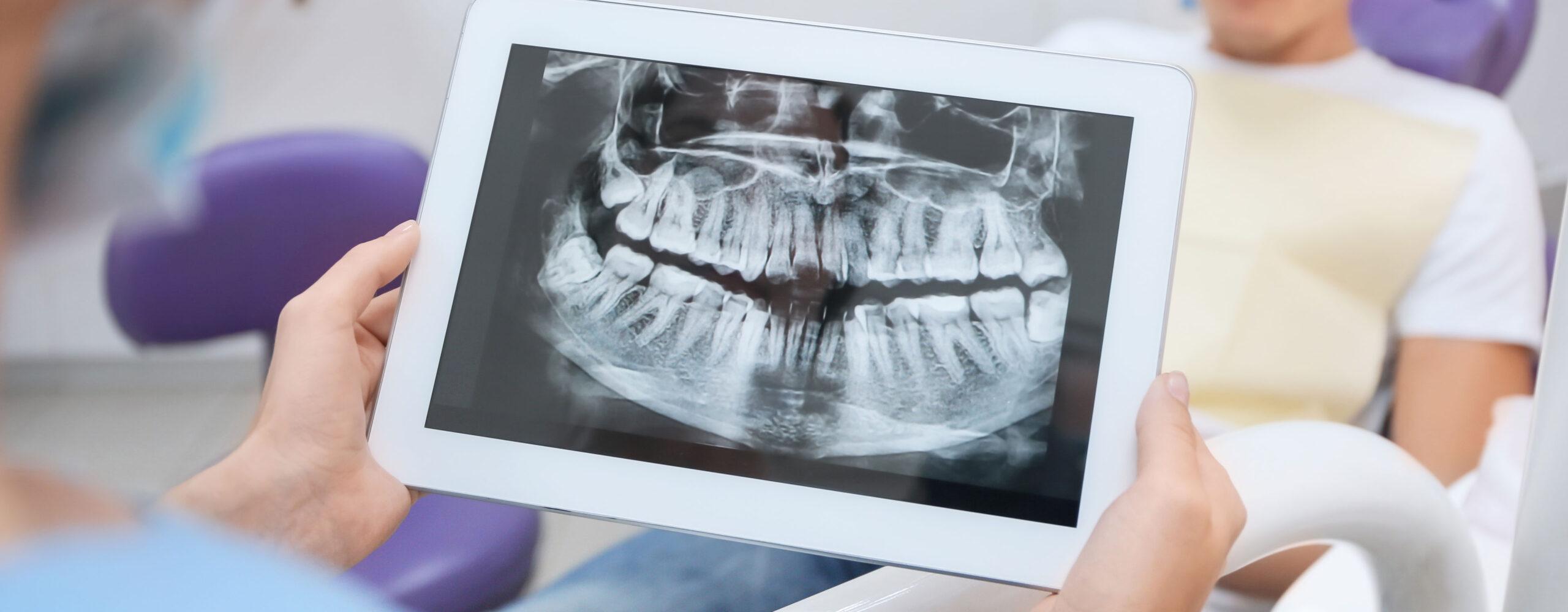 Radiologia Centro Dentale Parmense | Dentisti in Parma