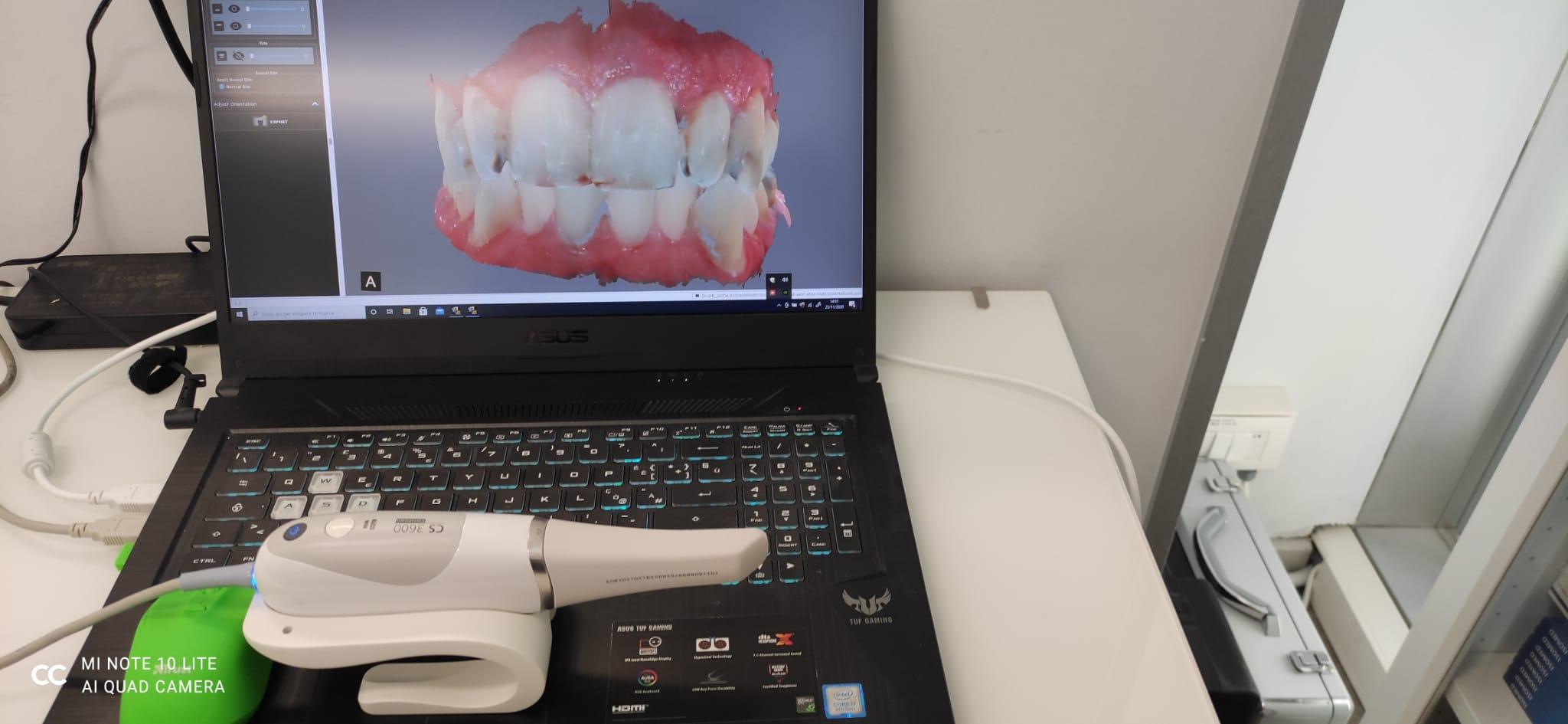 Agevolazioni Impianti Dentali con il Centro Dentale Parmense a Parma e Provincia: non occorre andare fuori Italia!